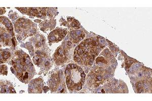 Image no. 3 for anti-Guanine Nucleotide Binding Protein (G Protein), alpha 11 (Gq Class) (GNA11) antibody (ABIN6262007)