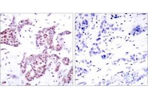 Immunohistochemistry (IHC) image for anti-Signal Transducer and Activator of Transcription 6, Interleukin-4 Induced (STAT6) (AA 608-657), (pTyr641) antibody (ABIN1531980)