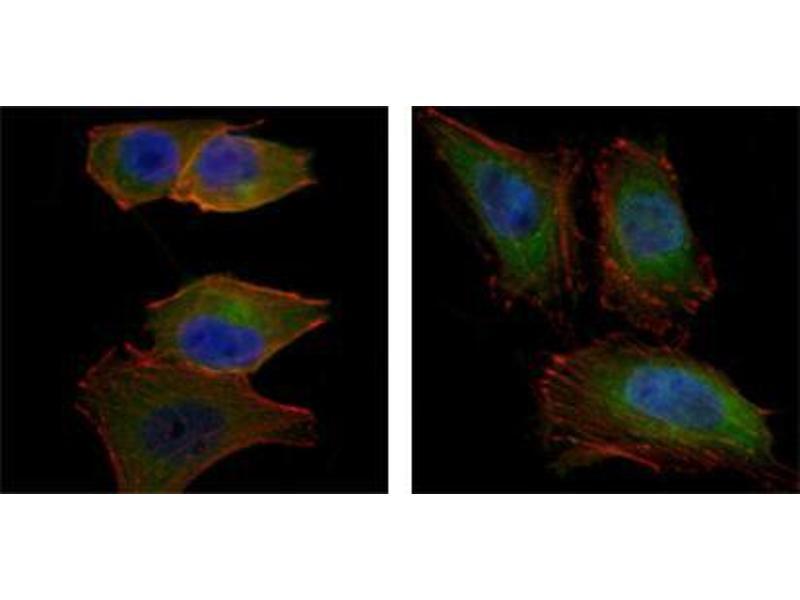 Immunocytochemistry (ICC) image for anti-V-Akt Murine Thymoma Viral Oncogene Homolog 2 (AKT2) antibody (ABIN1724720)