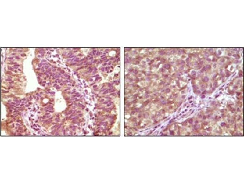 Immunohistochemistry (IHC) image for anti-BRAF antibody (V-Raf Murine Sarcoma Viral Oncogene Homolog B1) (ABIN1105488)