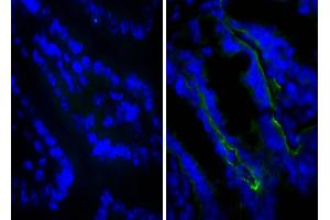 Image no. 1 for anti-Integrin beta 4 (ITGB4) antibody (ABIN135374)