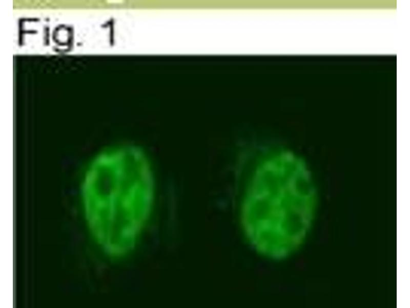 Immunofluorescence (IF) image for anti-Nuclear Receptor Co-Repressor 2 (NCOR2) antibody (ABIN152727)