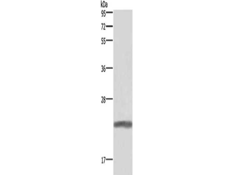 Western Blotting (WB) image for anti-Growth Hormone 1 (GH1) antibody (ABIN2434692)