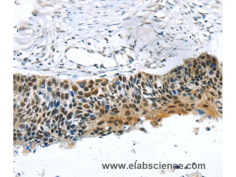 Immunohistochemistry (IHC) image for anti-Transcriptional Regulating Factor 1 (TRERF1) antibody (ABIN2427461)