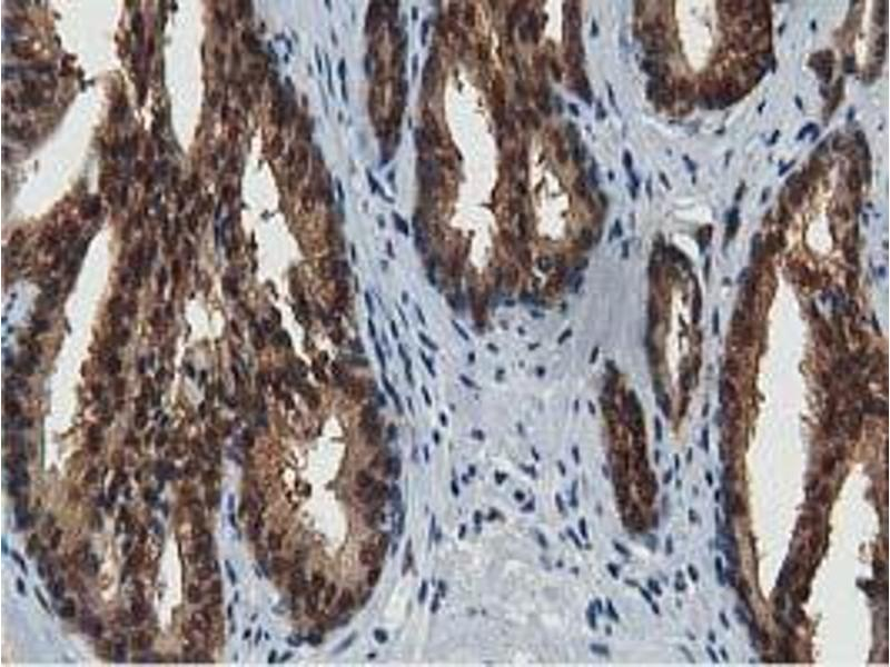 Image no. 9 for anti-Acetyl-CoA Acetyltransferase 2 (ACAT2) antibody (ABIN1496396)