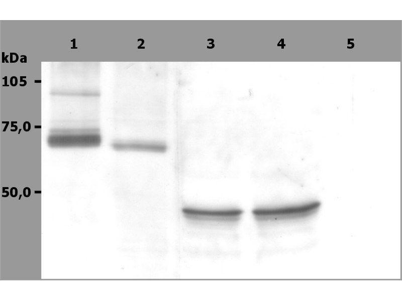 Image no. 3 for anti-Spleen tyrosine Kinase (SYK) (AA 5-360) antibody (ABIN94475)