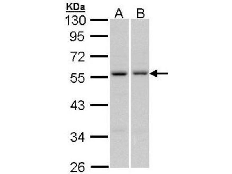 Western Blotting (WB) image for anti-Paired Box 6 (PAX6) (Center) antibody (ABIN4343835)