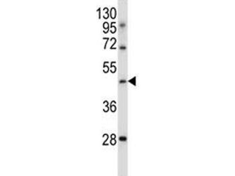 Western Blotting (WB) image for anti-Transducin-Like Enhancer of Split 6 (E(sp1) Homolog, Drosophila) (TLE6) (AA 30-58) antibody (ABIN3029211)