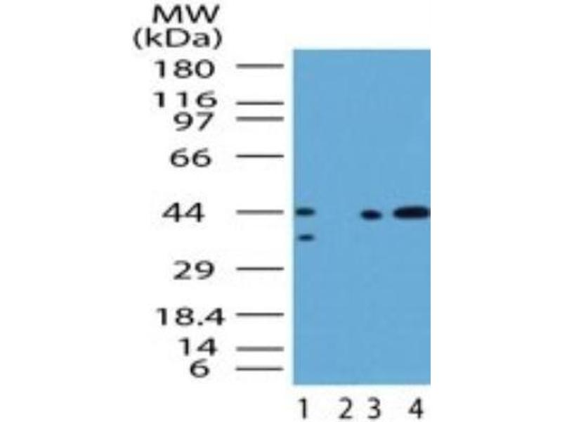 Western Blotting (WB) image for anti-SMAD, Mothers Against DPP Homolog 3 (SMAD3) antibody (ABIN4354672)