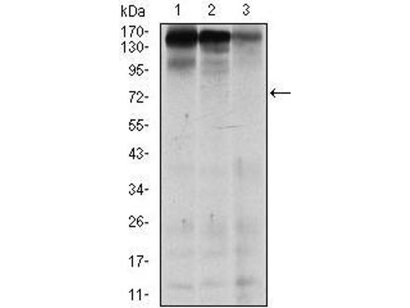 Western Blotting (WB) image for anti-MutS Homolog 6 (E. Coli) (MSH6) antibody (ABIN969292)