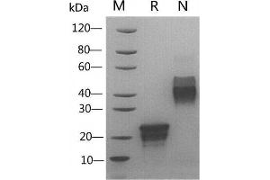 Image no. 1 for Vascular Endothelial Growth Factor (VEGF) (Active) protein (ABIN988281)