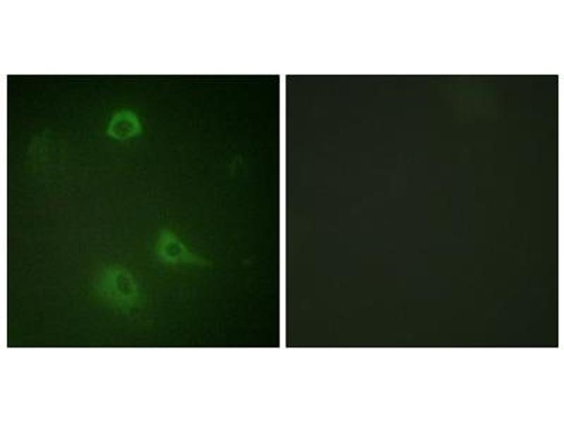 Immunofluorescence (IF) image for anti-Glutamate Receptor, Ionotropic, N-Methyl D-Aspartate 1 (GRIN1) (pSer890) antibody (ABIN1847318)