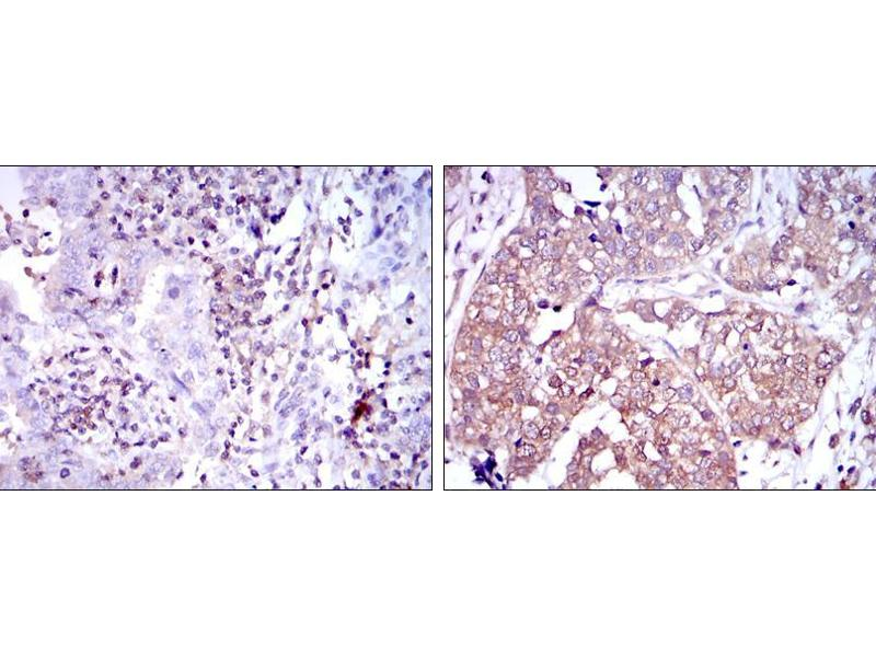 Immunohistochemistry (IHC) image for anti-NFKB1 antibody (Nuclear Factor of kappa Light Polypeptide Gene Enhancer in B-Cells 1) (ABIN969313)