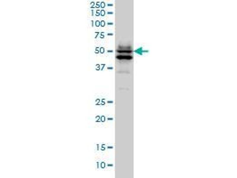 Immunohistochemistry (IHC) image for anti-GATA2 antibody (GATA Binding Protein 2) (AA 1-103) (ABIN394085)