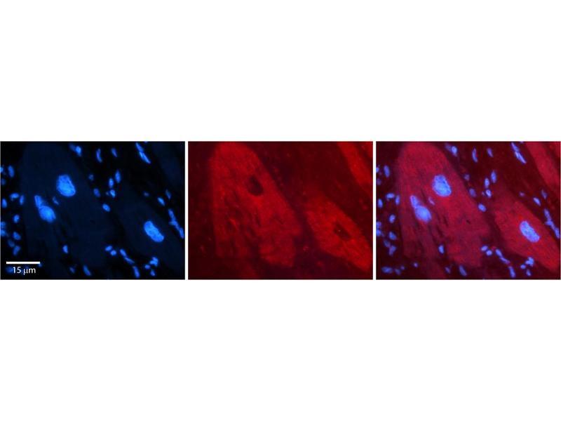 Immunohistochemistry (IHC) image for anti-DEAH (Asp-Glu-Ala-His) Box Polypeptide 30 (DHX30) (N-Term) antibody (ABIN2775228)