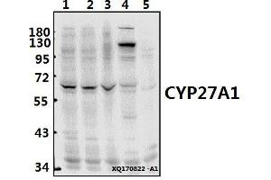 Image no. 1 for anti-Cytochrome P450, Family 27, Subfamily A, Polypeptide 1 (CYP27A1) (AA 100-150) antibody (ABIN6712543)