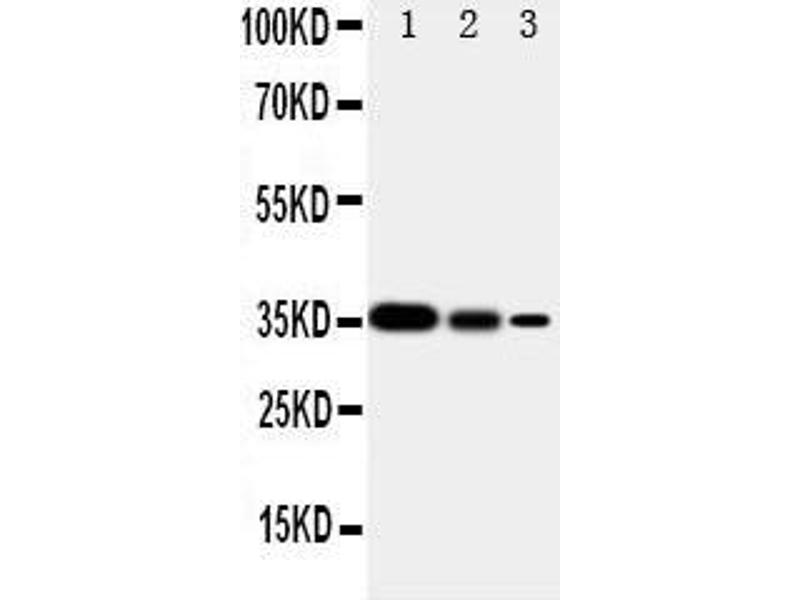 Western Blotting (WB) image for anti-SHC (Src Homology 2 Domain Containing) Transforming Protein 1 (SHC1) (AA 424-440), (C-Term) antibody (ABIN3044111)