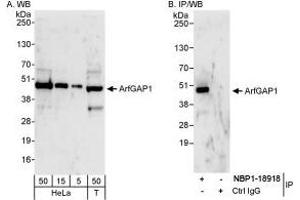 Western Blotting (WB) image for anti-ARFGAP1 antibody (ADP-Ribosylation Factor GTPase Activating Protein 1) (AA 356-406) (ABIN438754)