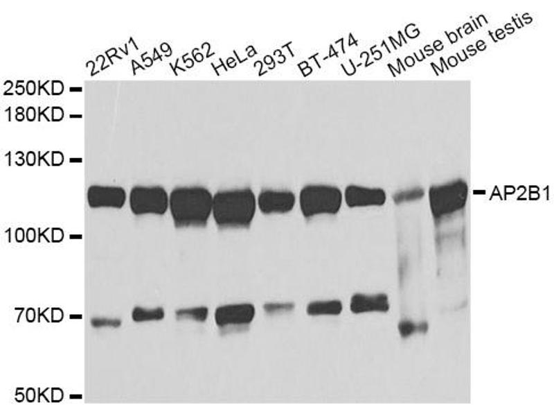 Image no. 1 for anti-Adaptor-Related Protein Complex 2, beta 1 Subunit (AP2B1) antibody (ABIN6569035)