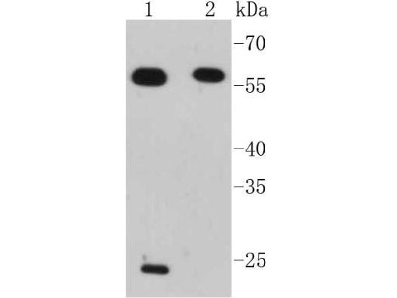 Western Blotting (WB) image for anti-Interferon Regulatory Factor 7 (IRF7) antibody (ABIN5946619)