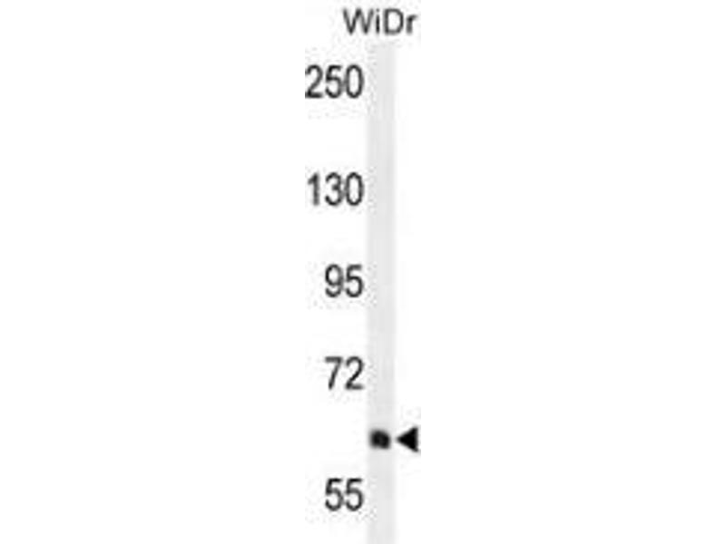 Western Blotting (WB) image for anti-Phosphoinositide-3-Kinase, Regulatory Subunit 5 (PIK3R5) (AA 770-800), (C-Term) antibody (ABIN954145)