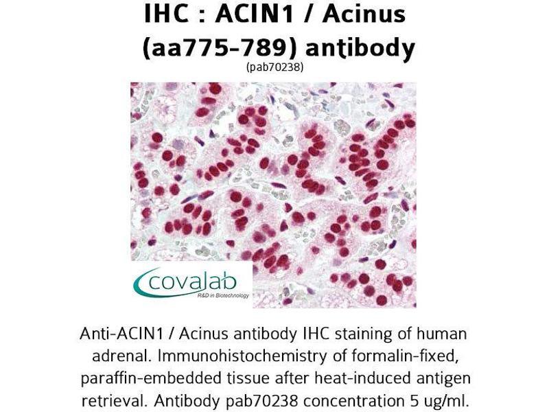 Image no. 3 for anti-Apoptotic Chromatin Condensation Inducer 1 (ACIN1) (AA 775-789) antibody (ABIN1731450)