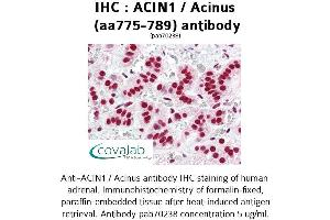 Image no. 3 for anti-Apoptotic Chromatin Condensation Inducer 1 (ACIN1) (AA 775-789) antibody (ABIN1731450)