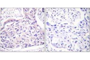 Image no. 2 for anti-Insulin Receptor Substrate 1 (IRS1) (AA 289-338), (pSer323) antibody (ABIN1531330)