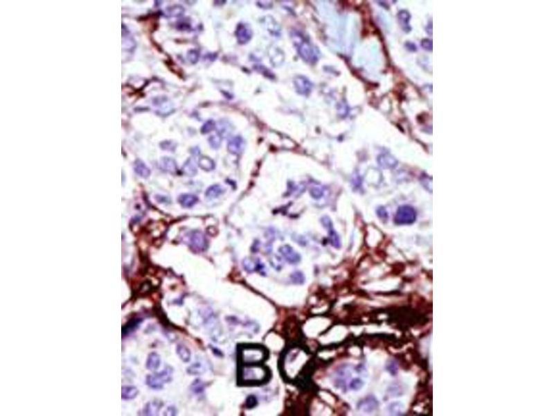 Immunohistochemistry (IHC) image for anti-Uridine-Cytidine Kinase (UCK) (AA 132-162), (C-Term) antibody (ABIN392731)