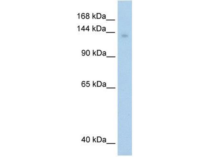 Western Blotting (WB) image for anti-Mov10, Moloney Leukemia Virus 10, Homolog (Mouse) (MOV10) (C-Term) antibody (ABIN309823)