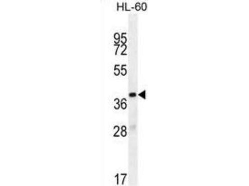 Image no. 2 for anti-Olfactory Receptor, Family 10, Subfamily J, Member 5 (OR10J5) antibody (ABIN2996119)