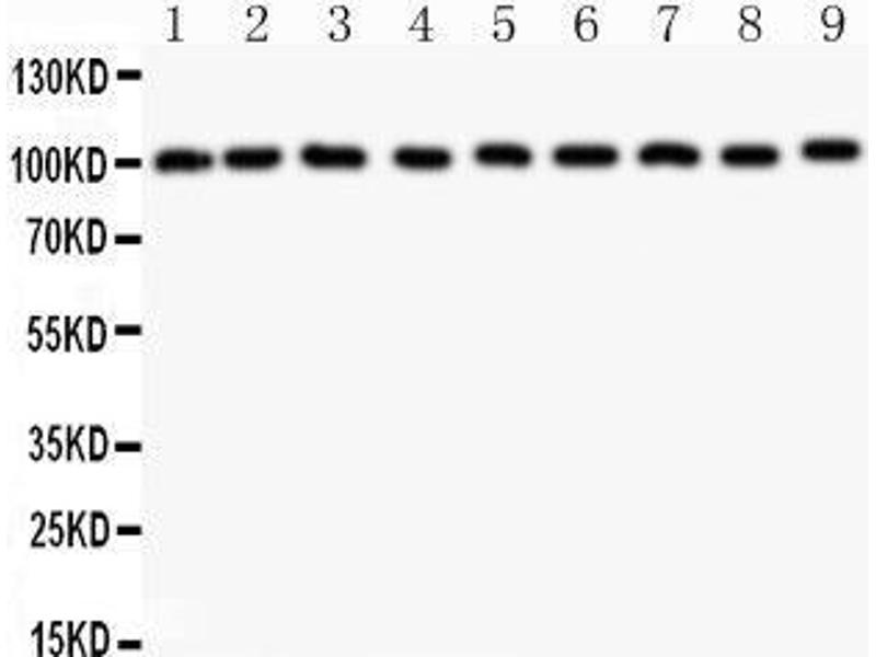 Western Blotting (WB) image for anti-Cas-Br-M (Murine) Ecotropic Retroviral Transforming Sequence (CBL) (AA 556-906) antibody (ABIN3043746)