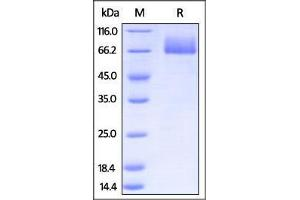 Image no. 1 for CD86 Molecule (CD86) (AA 24-245) (Active) protein (Fc Tag) (ABIN2870717)