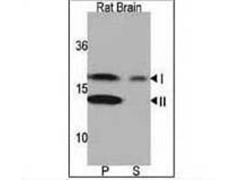 Western Blotting (WB) image for anti-LC3 (APG8A) (AA 1-30), (N-Term) antibody (ABIN388464)