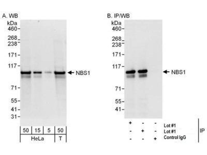 Western Blotting (WB) image for anti-NLR Family, Pyrin Domain Containing 2 (NLRP2) antibody (ABIN151745)