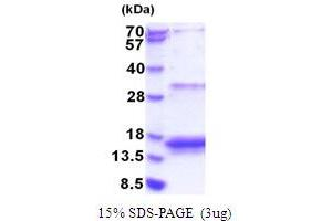 Image no. 1 for Eukaryotic Translation Initiation Factor 4E Binding Protein 3 (EIF4EBP3) (AA 1-100) protein (His tag) (ABIN5853824)
