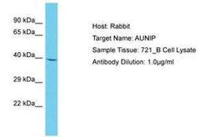 Image no. 1 for anti-Aurora Kinase A and Ninein Interacting Protein (AUNIP) (AA 54-103) antibody (ABIN6750663)