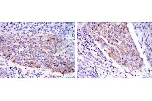 Image no. 1 for anti-Matrix Metallopeptidase 1 (Interstitial Collagenase) (MMP1) antibody (ABIN969287)
