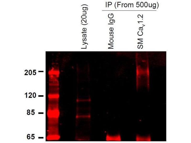Immunoprecipitation (IP) image for anti-Calcium Channel, Voltage-Dependent, L Type, alpha 1C Subunit (CACNA1C) (AA 1507-1733), (C-Term) antibody (Atto 565) (ABIN2485648)