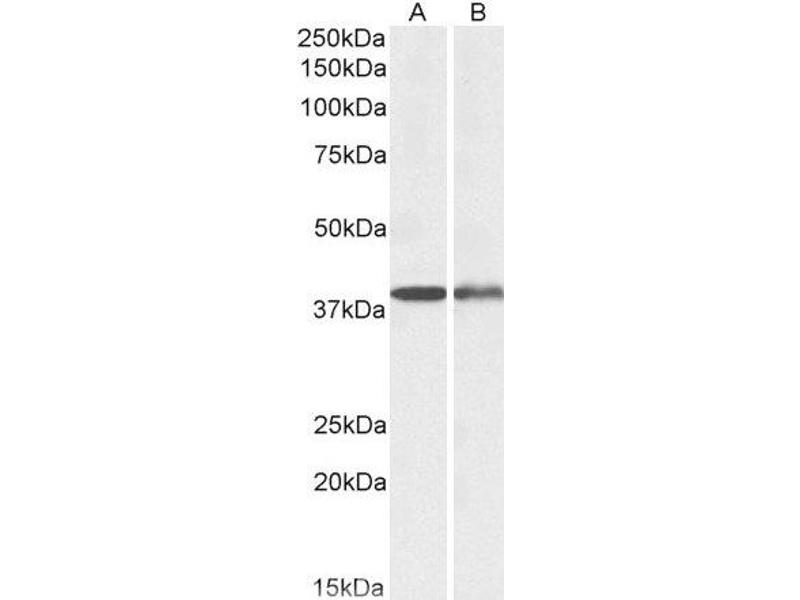 Western Blotting (WB) image for anti-Capping Protein (Actin Filament), Gelsolin-Like (CAPG) antibody (ABIN5609903)