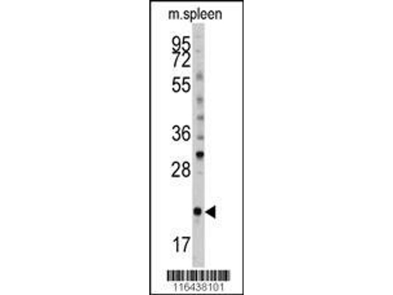 Western Blotting (WB) image for anti-BID antibody (BH3 Interacting Domain Death Agonist) (AA 39-68) (ABIN388100)