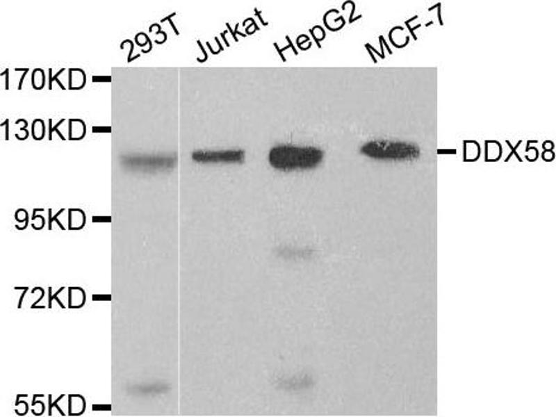 Western Blotting (WB) image for anti-DEAD (Asp-Glu-Ala-Asp) Box Polypeptide 58 (DDX58) antibody (ABIN1872240)