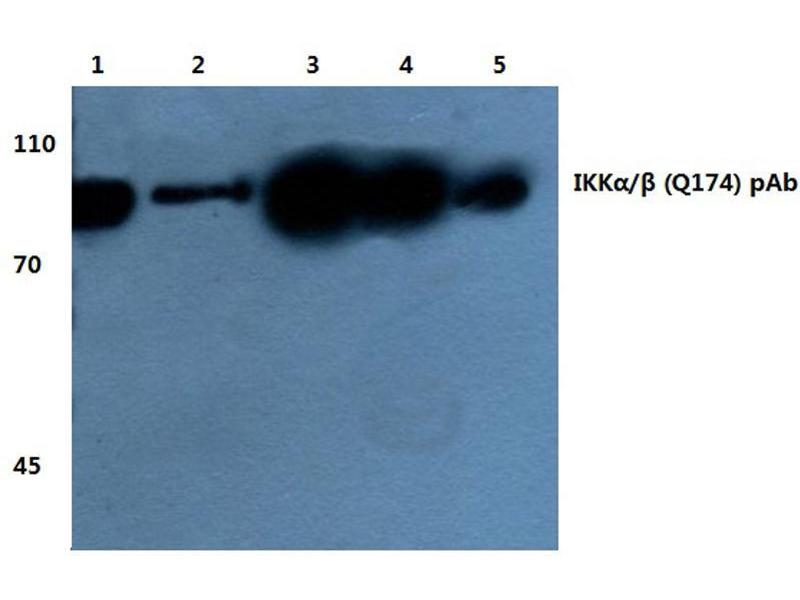 Western Blotting (WB) image for anti-CHUK antibody (conserved Helix-Loop-Helix Ubiquitous Kinase) (ABIN498205)