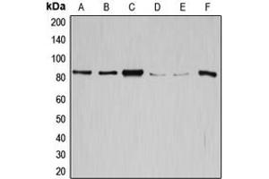 Western Blotting (WB) image for anti-Glycogen Synthase 1 (Muscle) (GYS1) (C-Term) antibody (ABIN2704871)