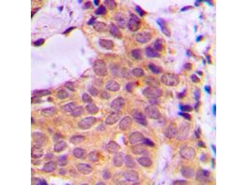 Immunohistochemistry (IHC) image for anti-Protein Kinase C, zeta (PRKCZ) (C-Term) antibody (ABIN2705134)