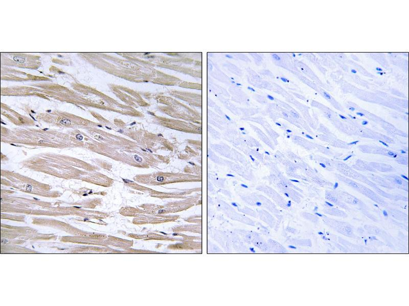 Image no. 2 for anti-DnaJ (Hsp40) Homolog, Subfamily B, Member 11 (DNAJB11) antibody (ABIN1576103)