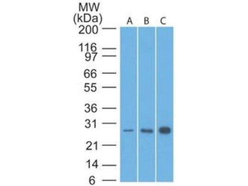 Western Blotting (WB) image for anti-B-Cell CLL/lymphoma 2 (BCL2) antibody (ABIN4283388)