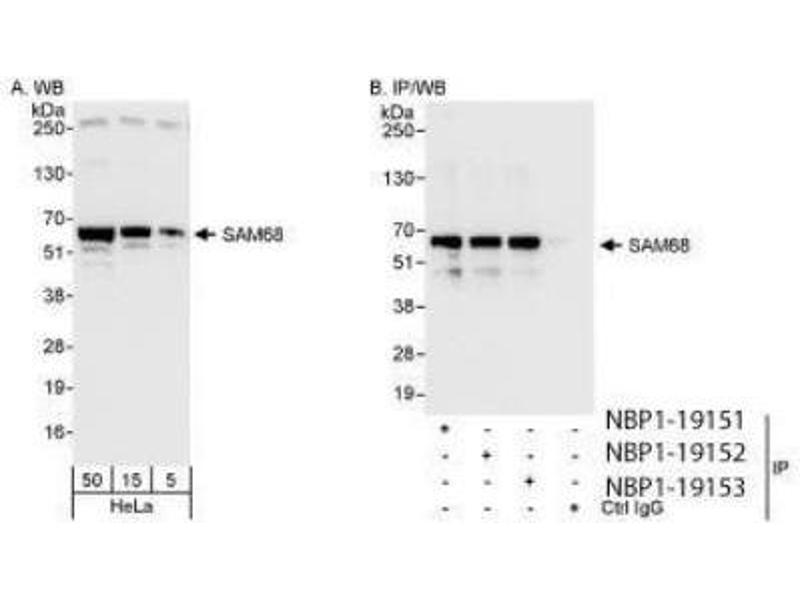 Western Blotting (WB) image for anti-KH Domain Containing, RNA Binding, Signal Transduction Associated 1 (KHDRBS1) (AA 1-50) antibody (ABIN4351941)