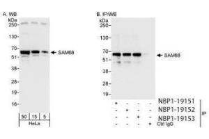 Western Blotting (WB) image for anti-KHDRBS1 antibody (KH Domain Containing, RNA Binding, Signal Transduction Associated 1) (AA 1-50) (ABIN4351941)