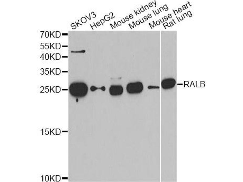 Western Blotting (WB) image for anti-V-Ral Simian Leukemia Viral Oncogene Homolog B (Ras Related, GTP Binding Protein) (Ralb) antibody (ABIN2564866)